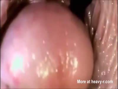 Internal View Of Vagina During Penetration